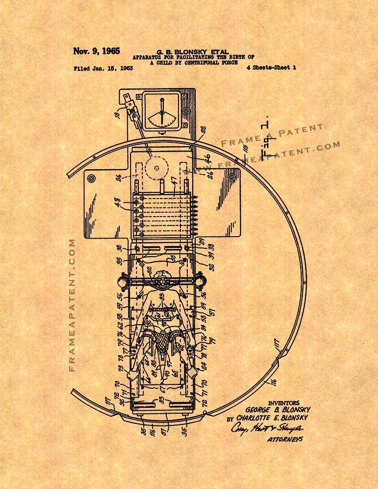 Странное изобретение Блонски, для облегчения процесса родов.
