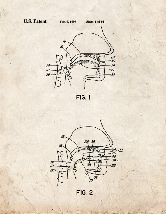 Dental Appliance for Treatment Of Snoring and Obstructive Sleep Apnea Patent Print