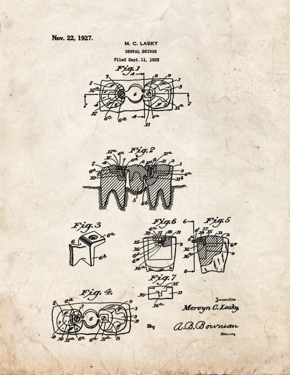 Dental Bridge Patent Print