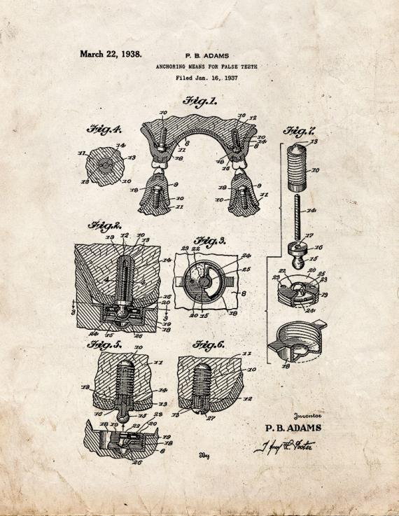 Anchoring Means for False Teeth Patent Print